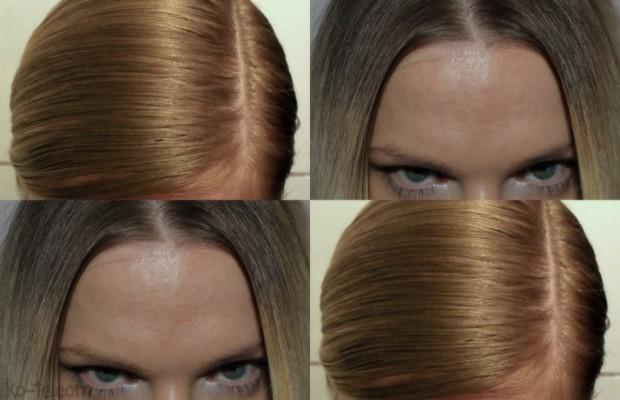 Во время мытья сильно выпадают волосы причины