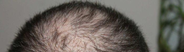Выпадение волос (13 фото)
